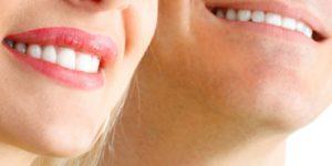 6 мифов об отбеливании dental centre