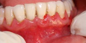 Гингивит dental centre