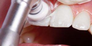 профессиональная гигиена dental фcentre
