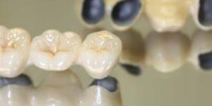 металлокерамические коронки dental centre