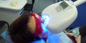 dental centre лазерное отбеливание