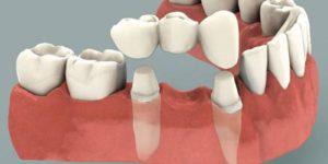 мостовидные протезы dental centre