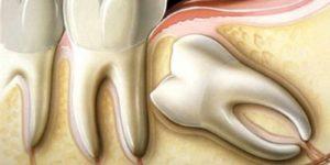 ретинированные зубы dental centre