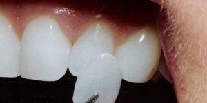 виниры на зубы dental centre